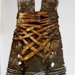 Fixierung der Bruchfragmente mit einer Ledermanschette